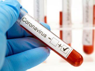 Esistono farmaci o vaccini per combattere il Coronavirus?