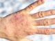 Psoriasi malattia della pelle
